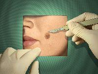 La chirurgie du cancer de la peau